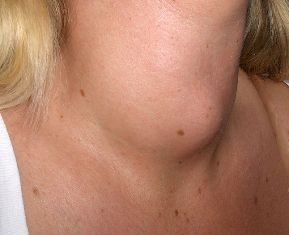 penyakit bengkak kelenjar tiroid