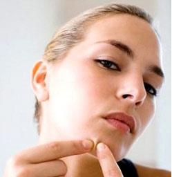 http://www.biovco.com/kdgn/images/jerawat-02sb.jpg